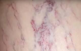 Яблочный уксус при варикозе — лечение ног, наружное использование, видео